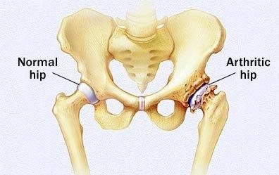 hip-arthritis (2)